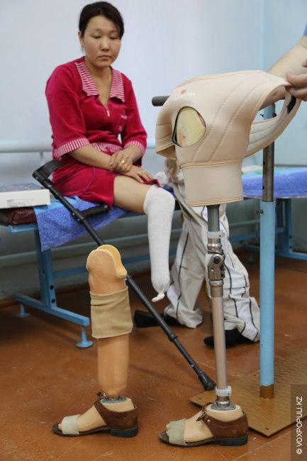 Фото ступни девушки с ампутированным пальцем