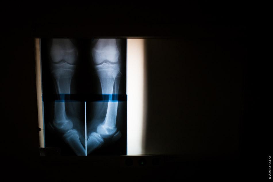 – Каждый раз, когда хирург отнимает ногу у пациента, он должен помнить об этой статистике...