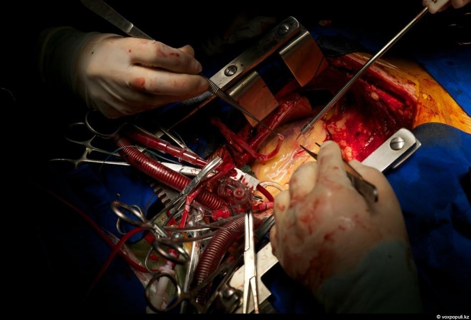 Реконструкция сердца